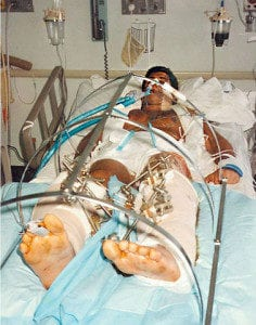 Steven Benvenisti after accident hospital