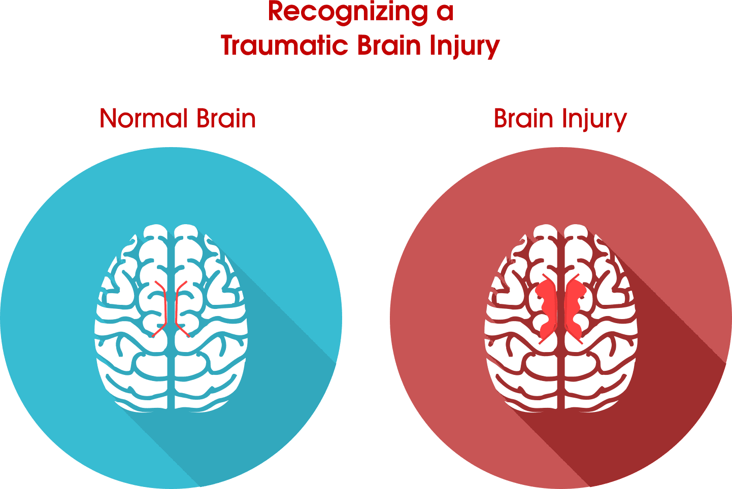 Car Accident Brain Injury Statistics