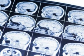 Traumatic Brain Injury May Heighten Risk of Dementia Later in Life